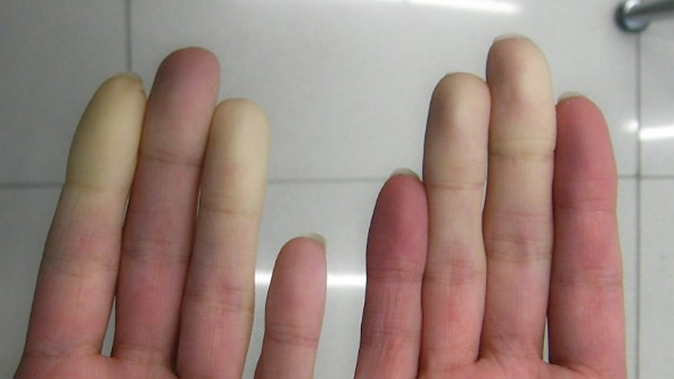 White patches of skin on a person's hand due to Hand-Arm Vibration Syndrome