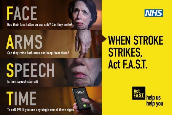 Infograph for Act F.A.S.T (Face, Arms, Speech, Time) campaign that tells you the symptoms of a stroke.